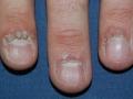 vírusos szemölcs az ujjakon